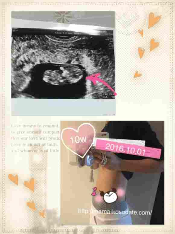 【妊娠初期】3ヶ月(10週)の体調、お腹、エコー写真